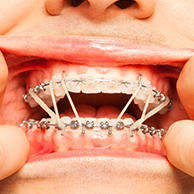 Sore Teeth/ Discomfort with Orthodontic  Treatment