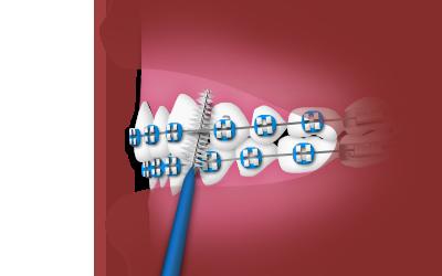 Using an Interdental Toothbrush