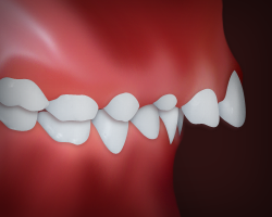 Upper Front <br>Teeth Protrusion